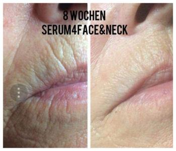Serum4 Face&Neck