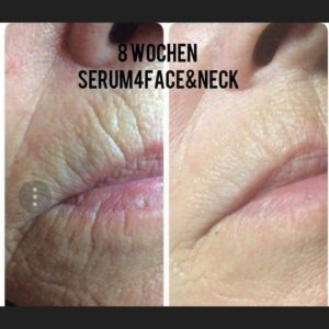 Serum 4 Facer&Neck